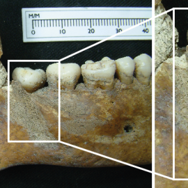 Palaeopathology and Scurvy